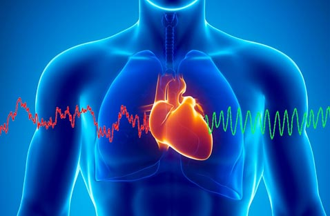 La cohérence cardiaque